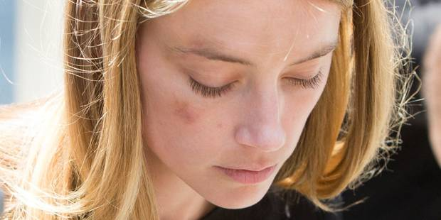 Amber Heard : elle contre-attaque en montrant les photos qui accusent - La DH