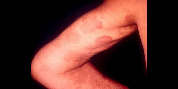 Le Lupus touche 5000 Belges