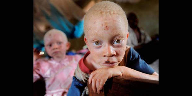 Albinos? et fiers de l'être - La DH