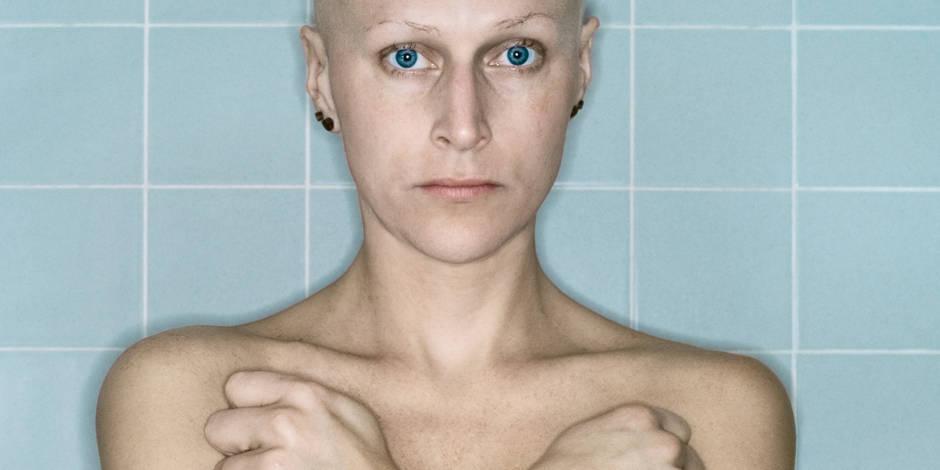 Une artiste prend en photo l'évolution de son cancer du sein