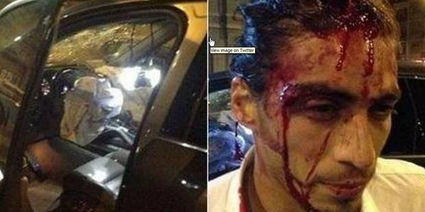 Le joueur de foot Martin Caceres s'explose dans un abribus avec sa Ferrari (PHOTOS) - La DH