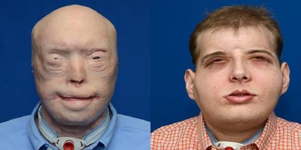 USA: greffe totale du visage présentée comme la plus complète à ce jour - La DH