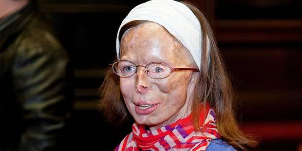 Exclusif: Patricia Lefranc va revoir le vitrioleur - La DH