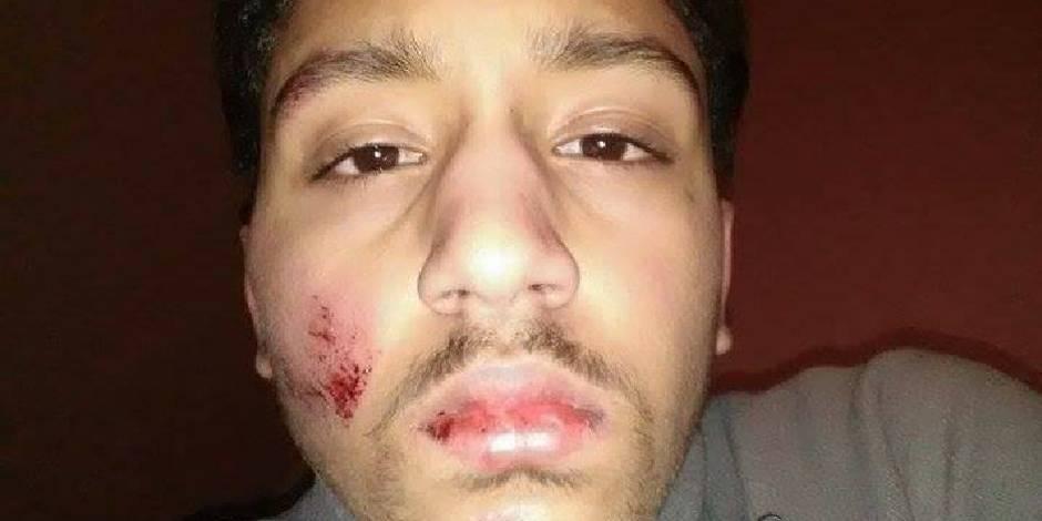 Molenbeek: la police de nouveau accusée de violences ! (PHOTOS)