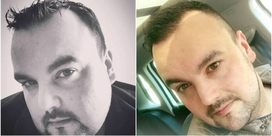 L'incroyable transformation d'Axel Hirsoux