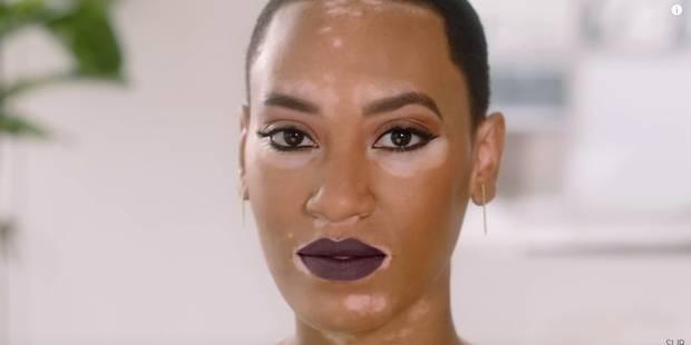 Cette mannequin atteinte de vitiligo est devenue l'égérie d'une marque de cosmétiques - La DH